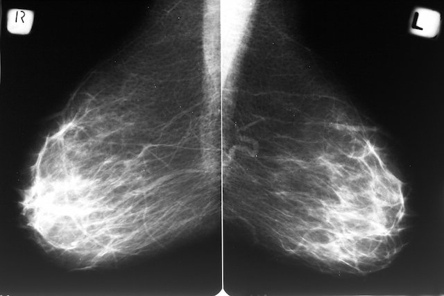 Mamografia com Contraste: Para que serve e Como é Feita