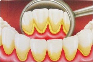 Tártaro nos dentes - placa bacteriana