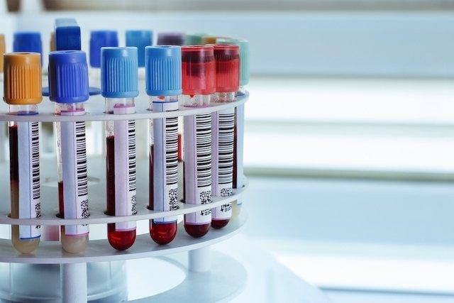 Exames que confirmam a anemia
