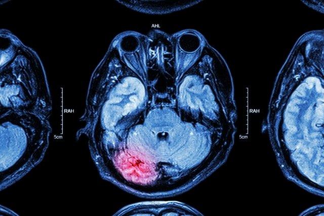 Primeiros socorros para traumatismo craniano