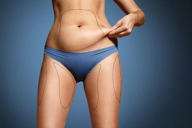 7 principais riscos da lipoaspiração