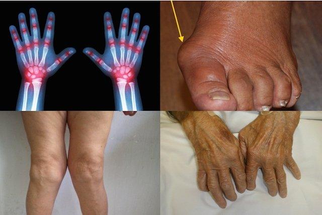como é a rigidez da artrite reumatóide