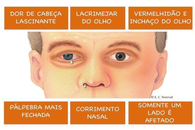Cefaléia em salvas: A dor de cabeça Suicida