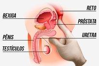 quais os sintomas da próstata inchada