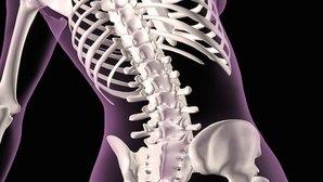 3 formas de tratar a Osteoporose para fortalecer os ossos