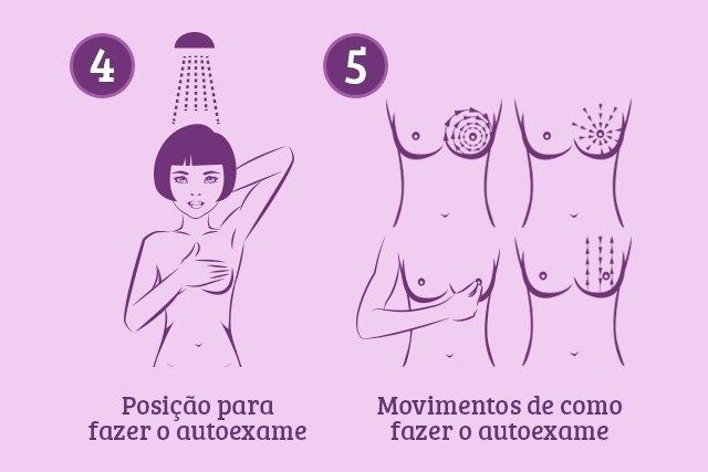 Como fazer o autoexame da mama