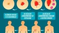 O que é metástase, sintomas e como acontece