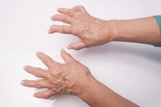 Sinais de deformidade devido artrite reumatoide