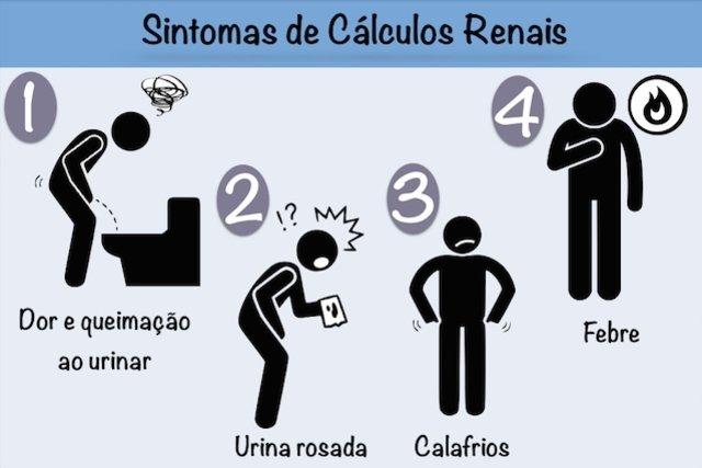 Sintomas de cálculo renal