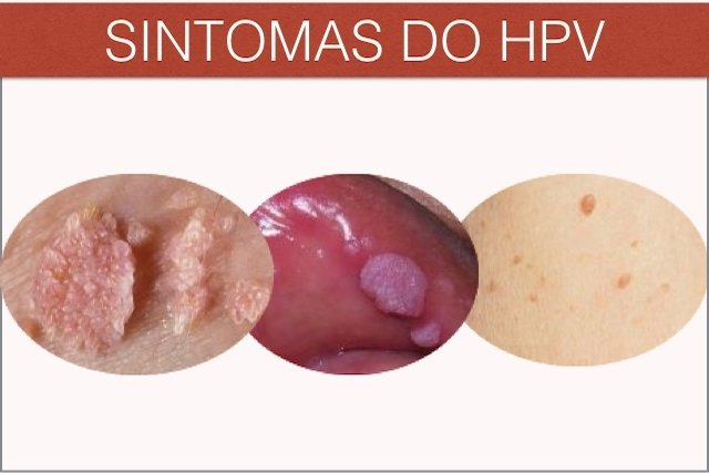 Verruga com crista pode ser sintoma de HPV