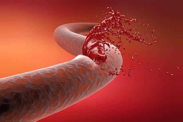 Como identificar os tipos de hemorragia