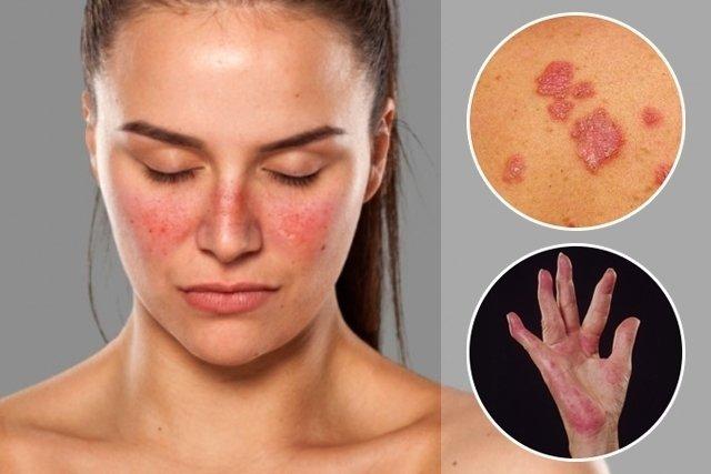 Doença Lúpus - lesão no rosto como asas de borboleta