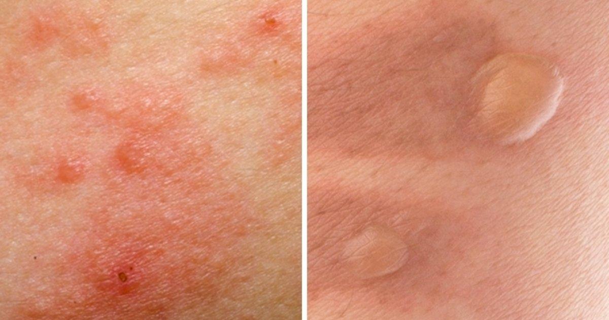 9683360d1 Tipos de manchas na pele e Como tirar cada um - Tua Saúde
