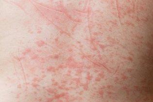 Manchas da dengue na pele