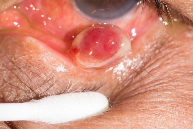 Como identificar e tratar o granuloma pirogênico