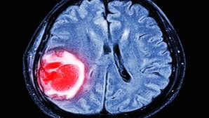 Quiste en el cerebro: qué es, principales síntomas y tratamiento