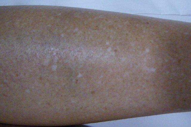 Sardas brancas na perna