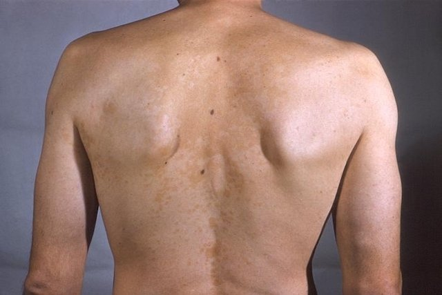 White Spots On Skin 7 Possible Causes And How To Get Rid Of Them Tua Saude