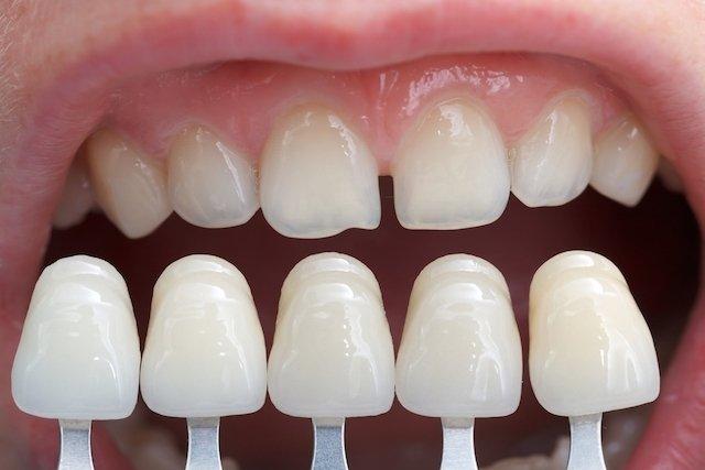 Como corrigir os dentes separados