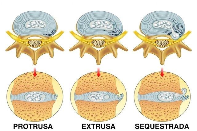 Tipos de hérnia de disco