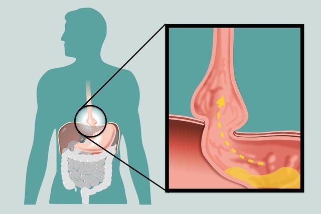 Sintomas de hérnia do hiato