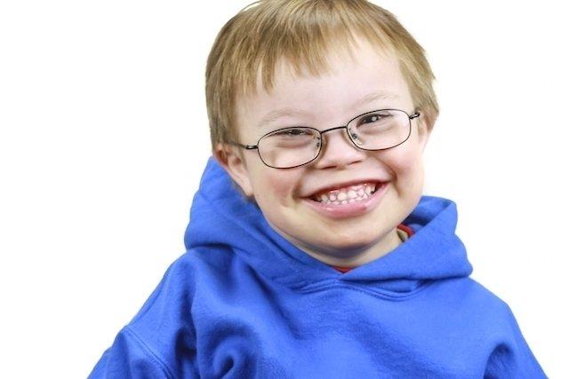 10 Problemas de saúde comuns na Síndrome de Down