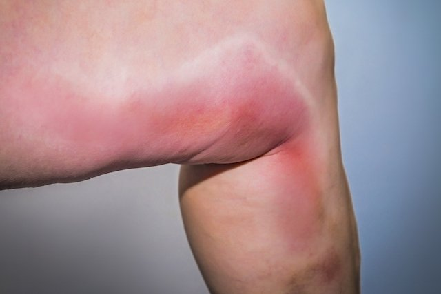 dor aguda na perna perto de veias onduladas