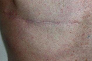 Cicatriz depois da cirurgia