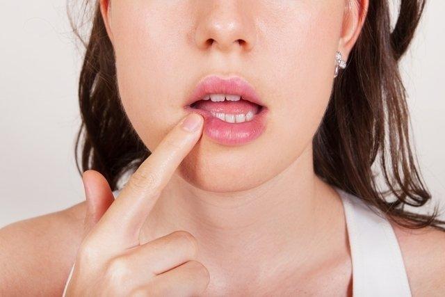 Cómo tratar el herpes labial (Fuego del labio)