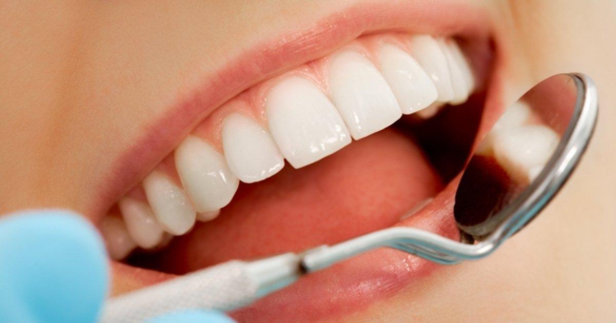 4 Opcoes De Tratamento Para Clarear Os Dentes Caseiros E