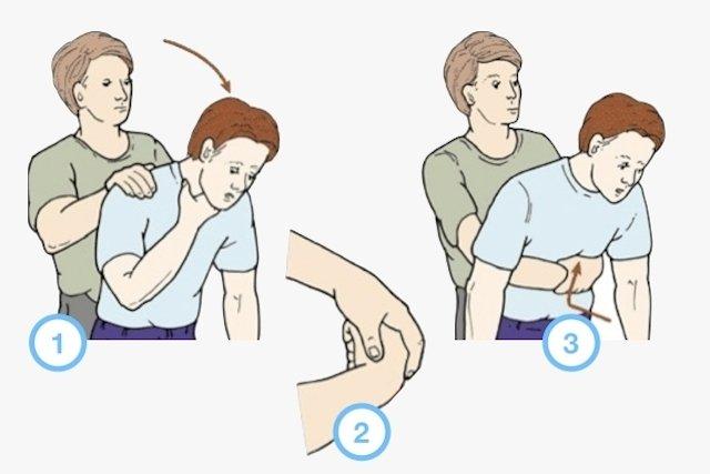 Resultado de imagem para A manobra de Heimlich
