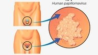 HPV: what is it, symptoms, transmission and treatment