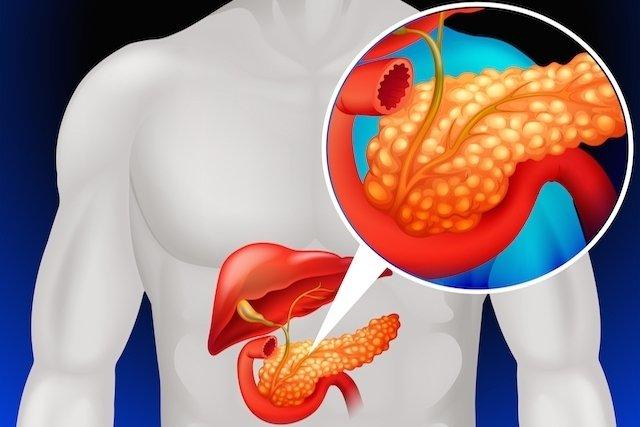Sintomas de pancreatite aguda e crônica