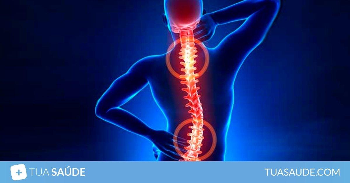 vértebras subluxadas síntomas de diabetes