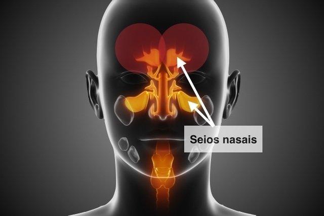 O que pode ser dor na testa: causas e o que fazer
