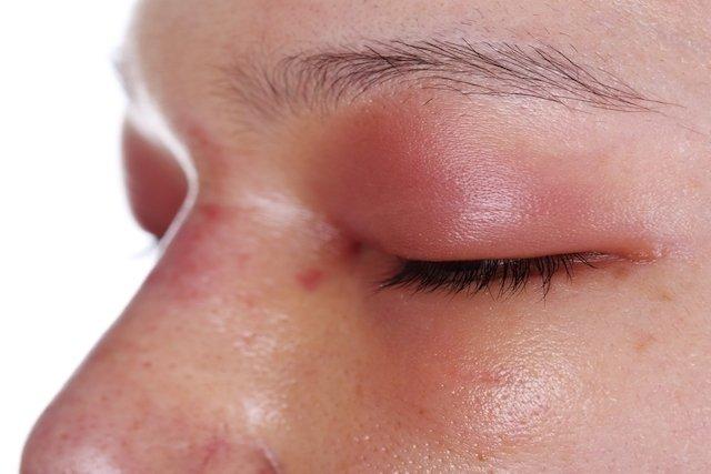 Sinais de alergia ao medicamento e o que fazer