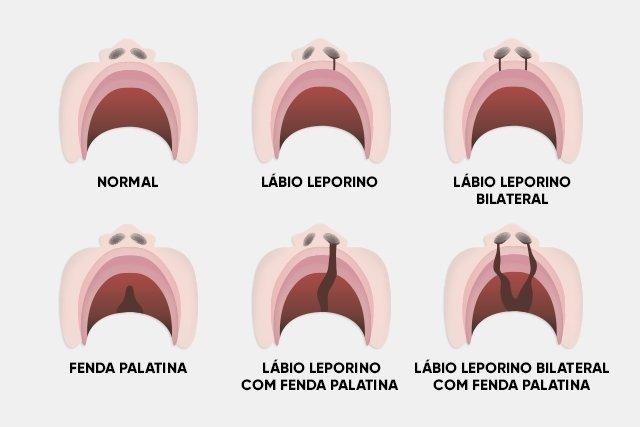 Tipos de lábio leporino e fenda palatina