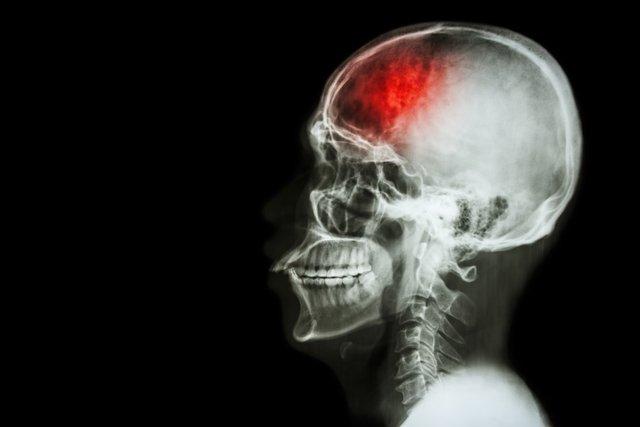 Isquemia cerebral: O que é, Sintomas e Tratamento