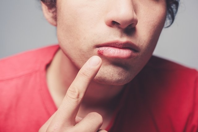 Conoce los síntomas y evita contagiar el herpes labial