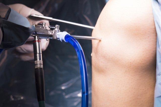 O que é a artroscopia do ombro e seus riscos