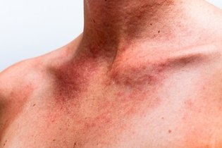 Saiba como identificar a alergia ao protetor solar e o que deve fazer