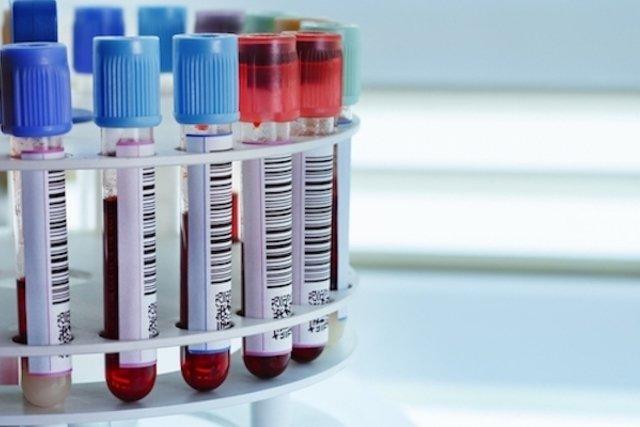 O que é Anemia Hemolítica Autoimune e como tratar