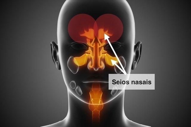 O que é sinusite, principais causas e como tratar