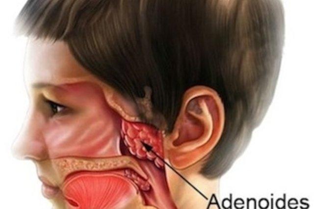 Cirurgia de adenoide: o que é e como é feita a recuperação