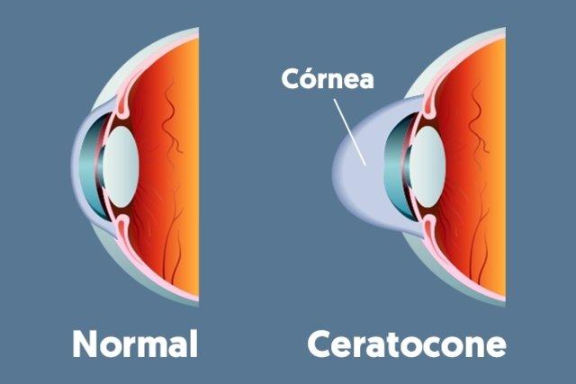 O que é Ceratocone e principais sintomas