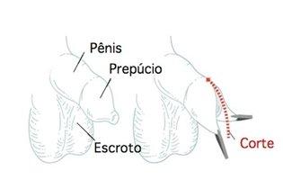 Saiba quando fazer cirurgia para tratar a fimose