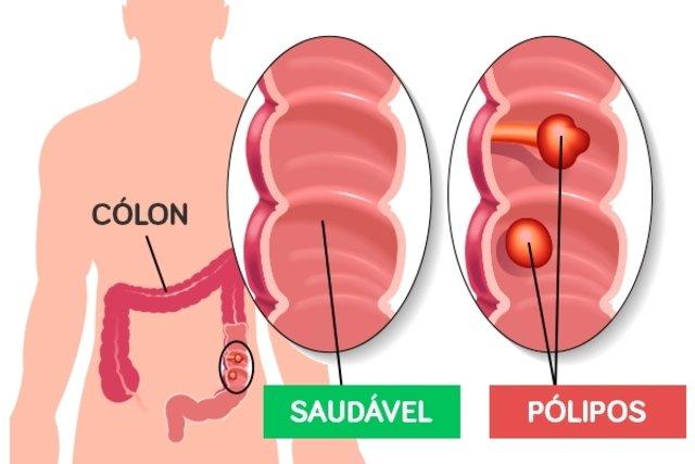 Cancer colon gases. Cancerul de Colon