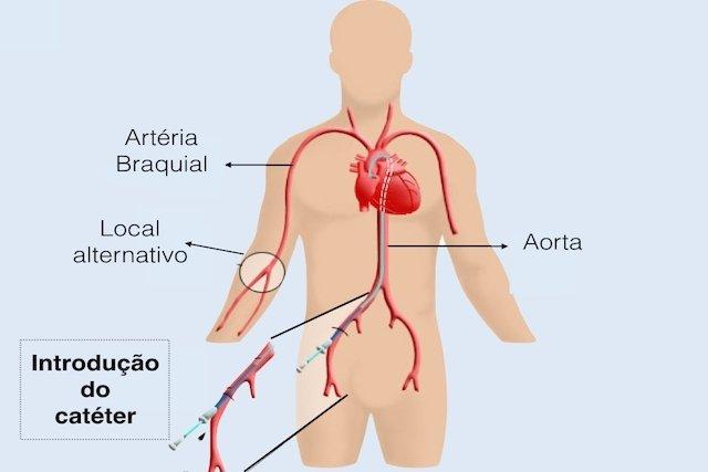 Como é feito o cateterismo cardíaco