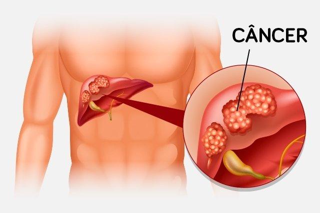 Saiba identificar os sinais de câncer no fígado