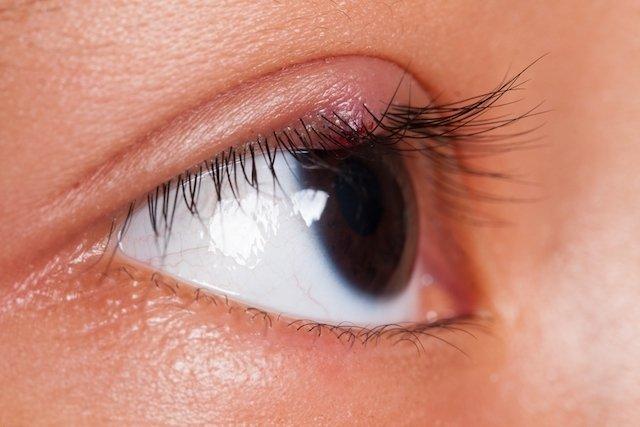 remedios para curar un orzuelo en el ojo